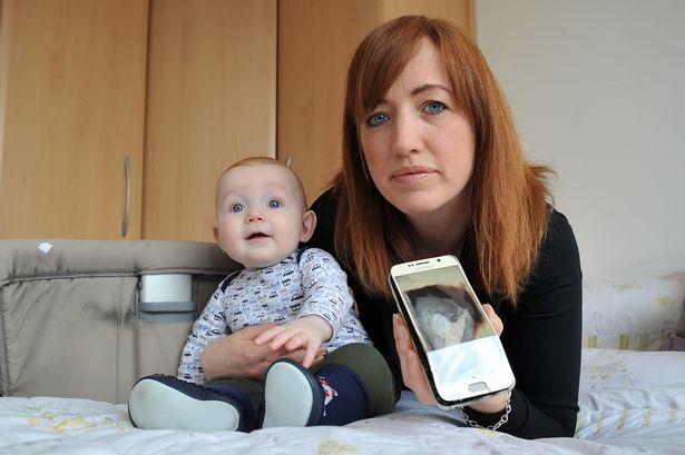 Un Galaxy S6 explota y casi deja gravemente herido a un bebe